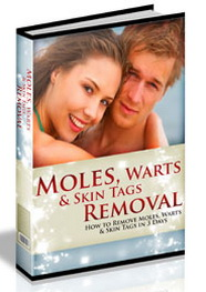 Moles, Warts and Skin Tags Removal
